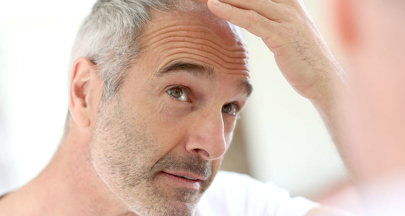 What To Do Before Hair Transplantation?